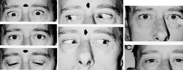 Parino syndrome - why there is paralysis of the vertical eye?