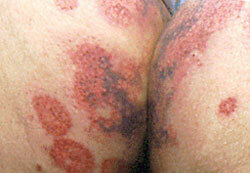 Persistent urticaria in adults