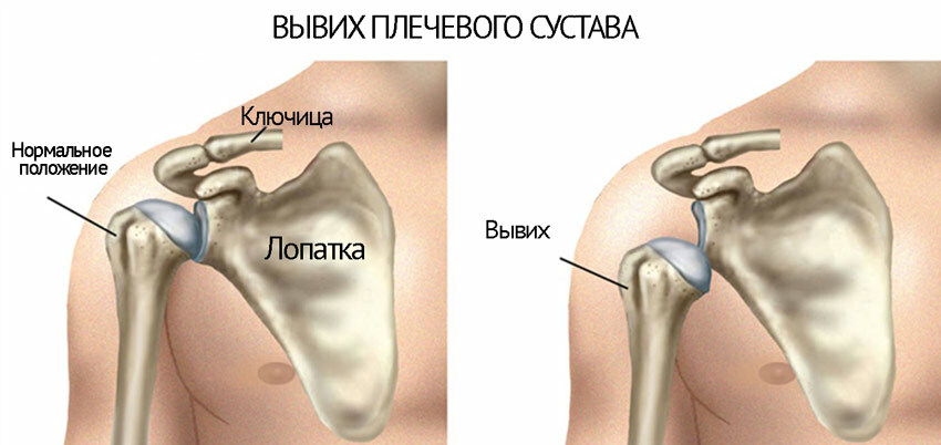 Dislocation of the shoulder joint