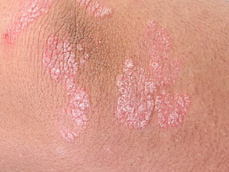 Psoriasis, what is it? First signs and symptoms, stages, treatment