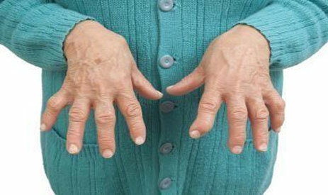 Rheumatoid arthritis of the fingers - the first symptoms, treatment