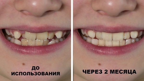 Malocclusion end caps for adults and children. Price, reviews