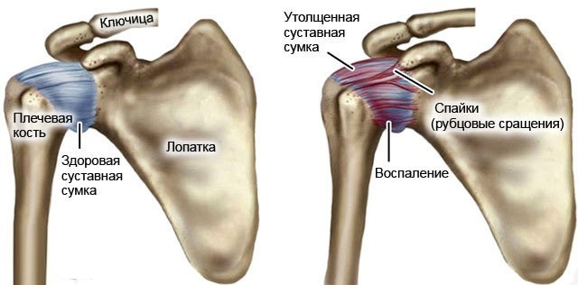 Periarthritis of shoulder joint. Treatment, symptoms, exercises, pills