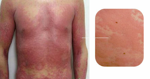 Photo of an acute form of urticaria
