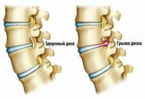 Pedos kauliuko skausmas