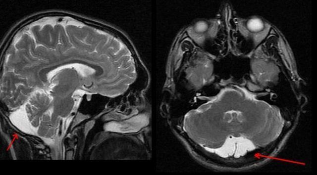 Likvornaya Zyste des Gehirns - was ist das, die Formen