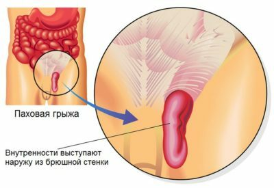 Inguinal and scrotal hernia in men and boys