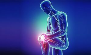 Treatment of gonarthrosis of the knee joint - medicines, chondroprotectors, sports and diet