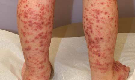 Gyermekek thrombocytopeniás purpura